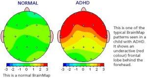 QEEG-brainmap-ADHD