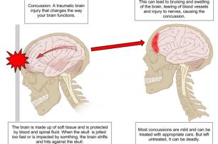 800px-Concussion_Anatomy_original_original_crop_exact