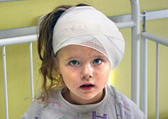 Child brain damage - parenting a child with traumatic brain injury [Photograph].       (n.d.). Retrieved from http://www.levylaw.com/child-brain-damage.php