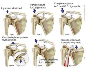 "The picture above shows diagrams of possible shoulder injuries and the locations of the injures for the audience to visually see. Photo comes from the website: ""Orthopaedic & Shoulder Surgeon"""