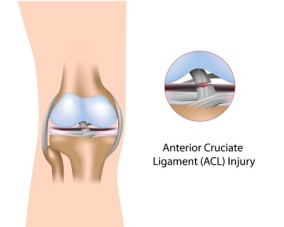 Knee-Anterior-Cruciate-Ligament-injury