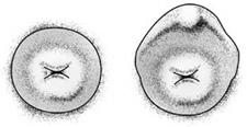cervix