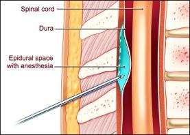 epidural_space