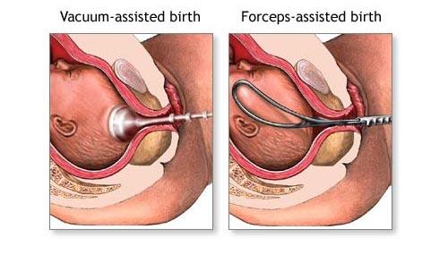 forcepsvacuumassistedbirth