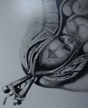 forcepsbirth