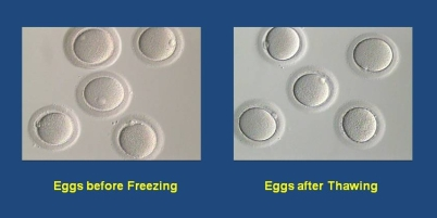 egg-freeze